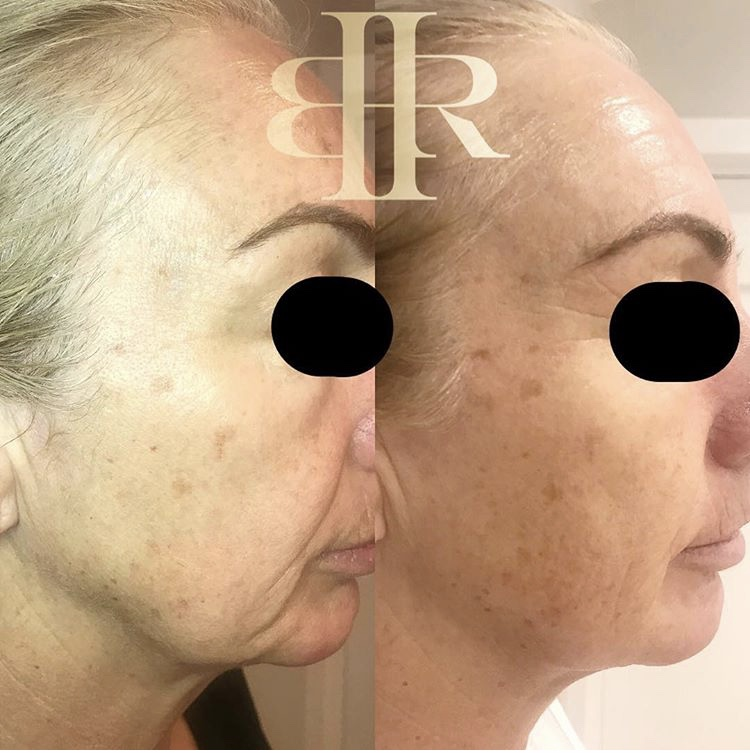 Facial Treamtents- dmk before and after